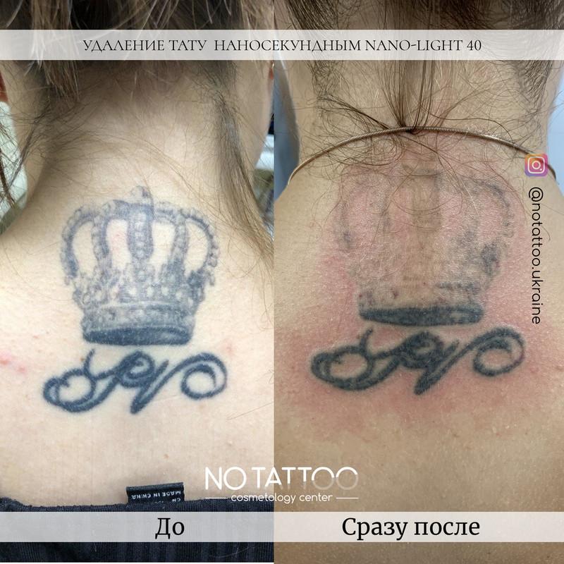 Лазерное удаление тату и татуажа наносекундным и пикосекундным лазерами